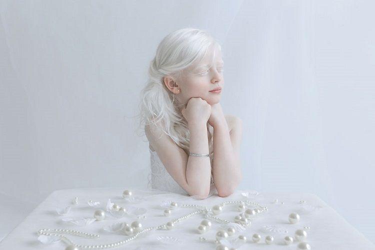 Fotografer ini Memotret Para Albino dan Hasilnya Sangat Menakjubkan