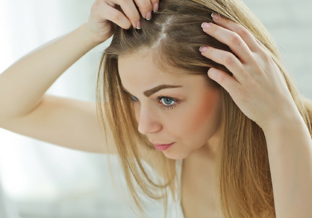 Hasil gambar untuk popbela.com ketombe rambut
