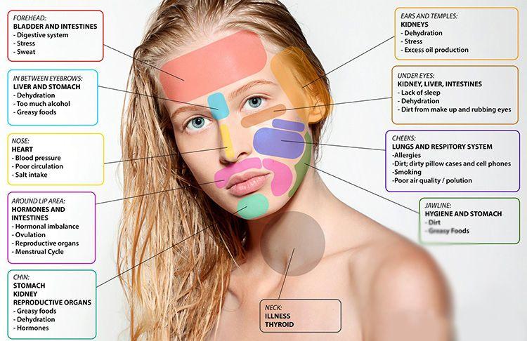 Kenali Titik-Titik Jerawat di Wajah dan Penyebabnya