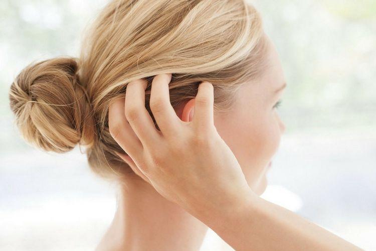 6. Membuat kulit kepala menjadi gatal. Ini yang akan Terjadi Pada Rambutmu  Ketika Diikat Terlalu Kencang cdfe58f853
