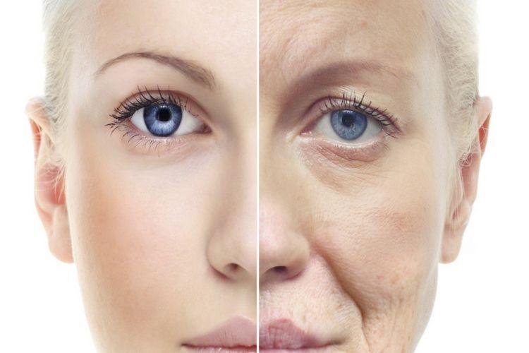 5 Hal Ini Bisa Jadi Penyebab Kenapa Kulit Wajahmu Terasa Kering