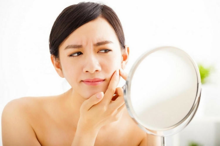 Ini 7 Penyebab Noda Hitam Pada Wajah yang Perlu Kamu Ketahui