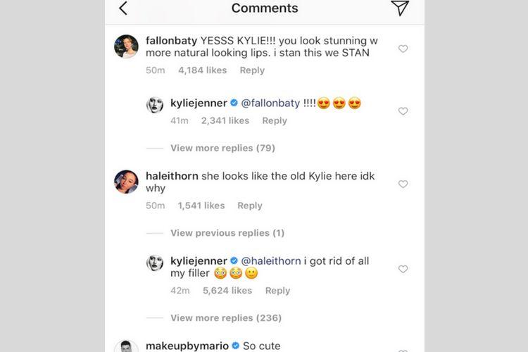 Singkirkan Lip Filler-nya, Ini Penampilan Kylie Jenner Sekarang