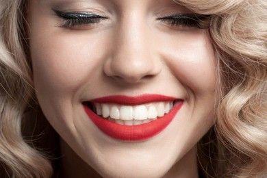 5 Hal Yang Harus Kamu Tahu Tentang Veneer Gigi