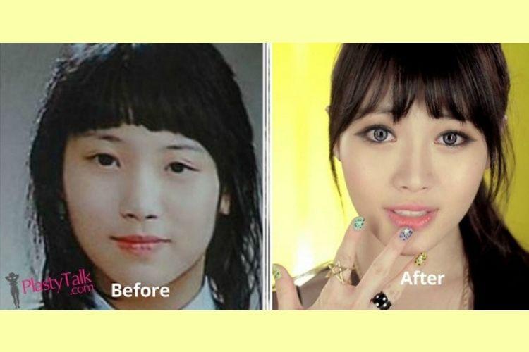Beda Abis! Ini Perubahan Para Seleb Korea Sebelum dan Sesudah Oplas