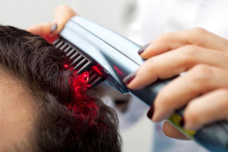 Nggak Sulit, Berikut Cara Menumbuhkan Rambut dengan Cepat
