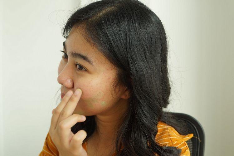 7 Langkah Makeup Flawless untuk Kamu yang Memiliki Kulit Berjerawat