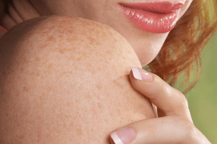 8 Manfaat Masker Tomat untuk Kecantikan yang Perlu Kamu Tahu