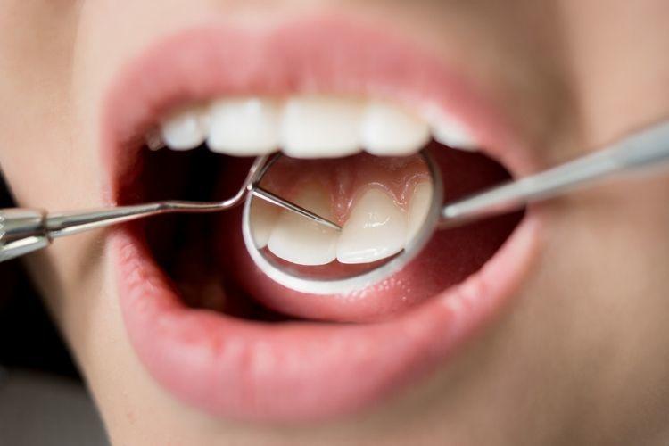 Biar Nggak Bau Mulut, Ini 11 Tips yang Bisa Kamu Coba