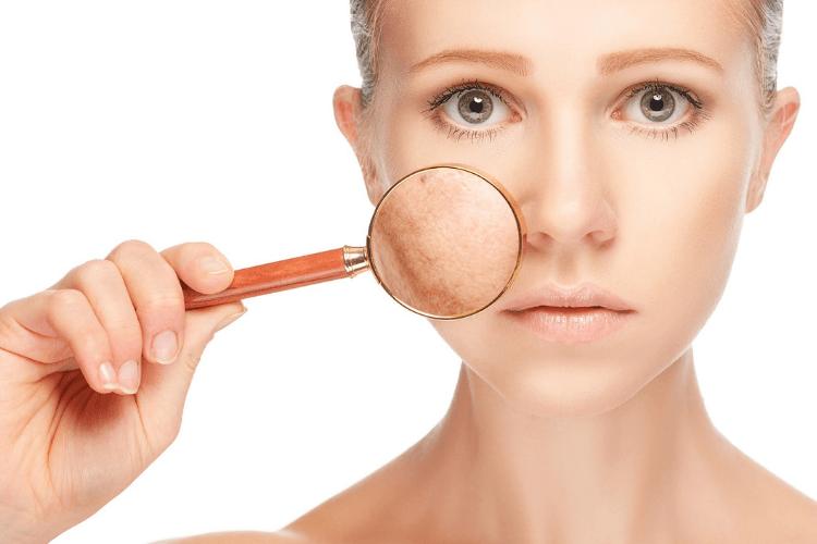 Jangan Sering Begadang, Ini 7 Efek Buruknya Bagi Kecantikan