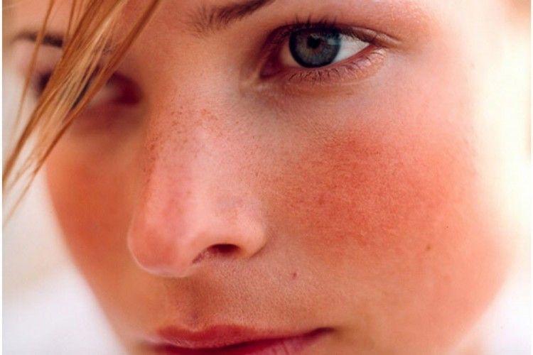 5 Produk yang Bantu Atasi Kemerahan Pada Wajah