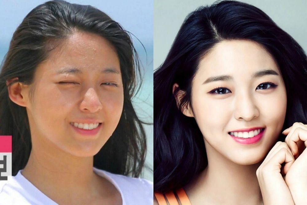 Punya Wajah Mulus, 9 Artis Korea Ini Pernah Berjuang Melawan Jerawat