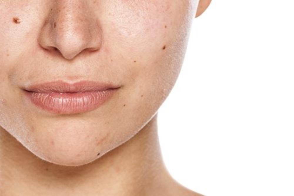 7 Alasan Kenapa Kamu Harus Rutin Menggunakan Skincare