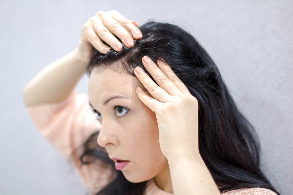 Cara Mengatasi Rambut Lepek Kamu Belum Berhasil? Cek 5 Hal Ini