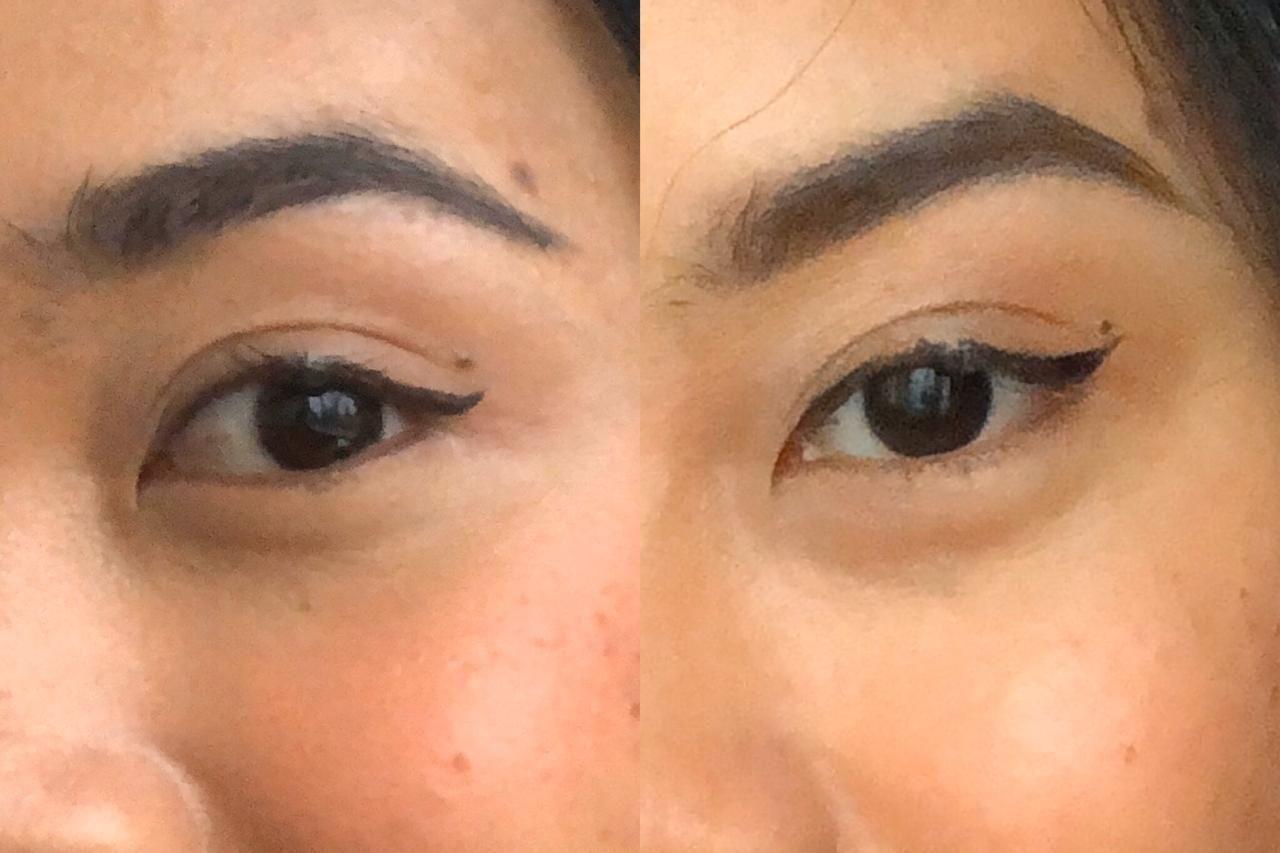 Menolak Botoks, Begini Caraku Atasi Kerutan di Sekitar Mata