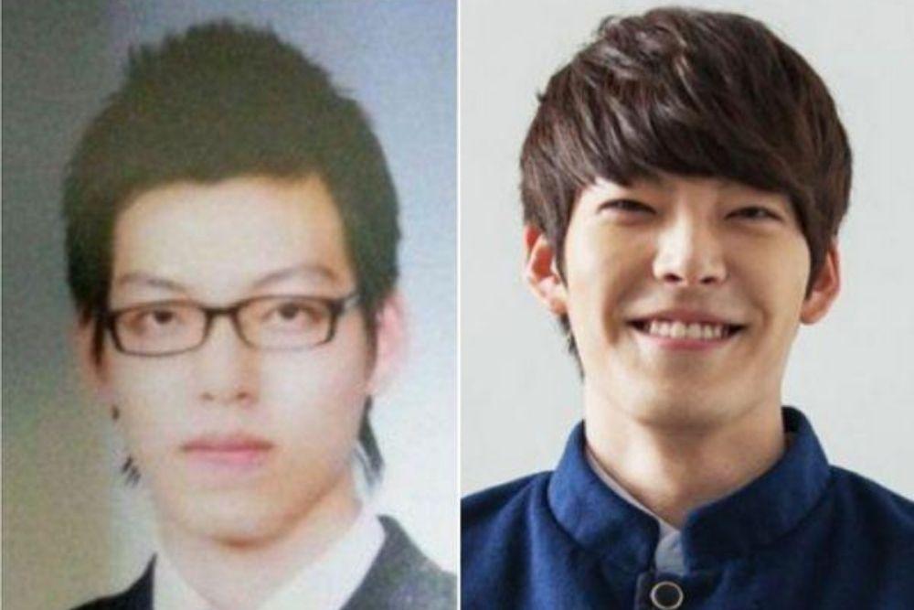 Potret 7 Aktor Korea Sebelum dan Sesudah Oplas, Dratis Banget!