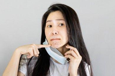 Kenali Maskne Cara Tepat dalam Mencegahnya