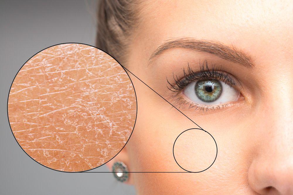 5 Fakta tentang Skin Barrier, Cewek Wajib Baca!