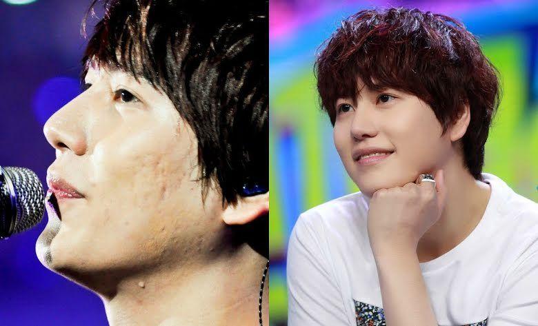 Nggak Selalu Mulus, Begini Potret 15 Idol Kpop Saat Berjerawat