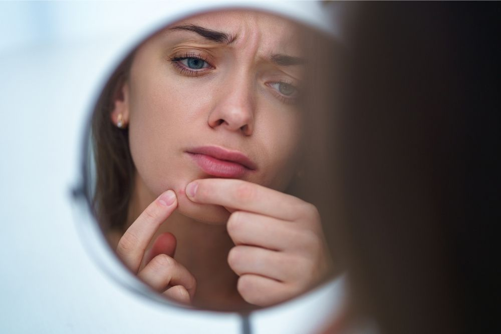 5 Cara Mengatasi Jerawat pada Kulit Kering dan Sensitif