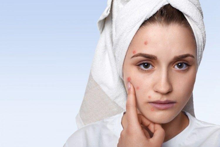 Banti Atasi Jerawat, 7 Rekomendasi Acne Patch yang Bisa Dicoba