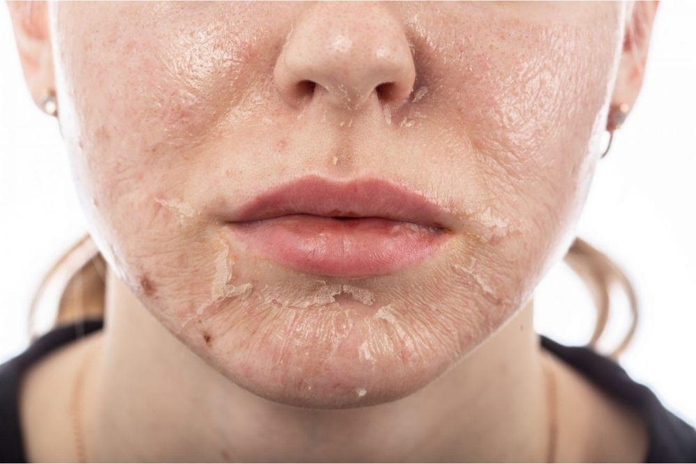 5 Cara Merawat Kulit Setelah Chemical Peeling